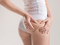 Celulit somatotipovi, stadijumi, tretmani