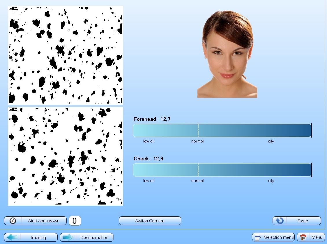 Kompjuterski softver za analizu kože